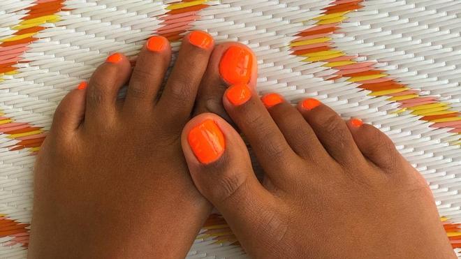 Tous les diabétiques doivent scruter régulièrement leurs pieds (photo d'illustration)