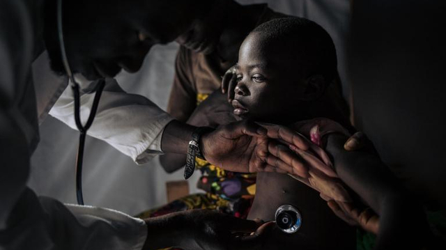 La rougeole revient en force en RD Congo