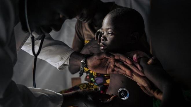 La rougeole fait à nouveau des ravages en RD Congo
