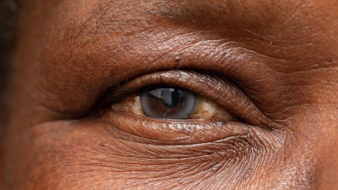 La cataracte est un trouble de la vue qui survient lorsque le cristallin perd sa transparence (image d'illustration)