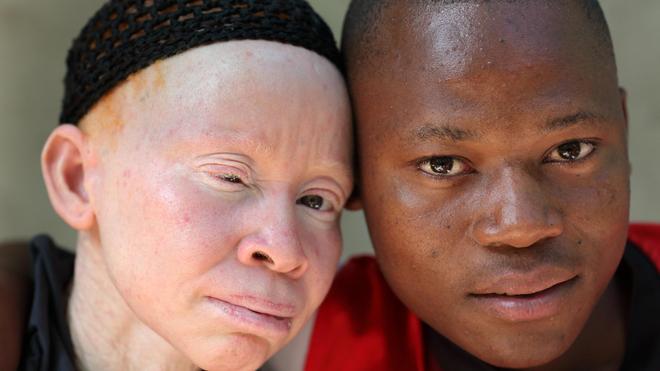 La plupart des albinos ont des problèmes oculaires