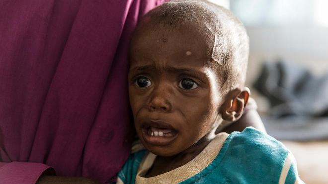 A Madagascar, la malnutrition des enfants pourrait quadrupler dans les prochains mois (Image d'illustration)