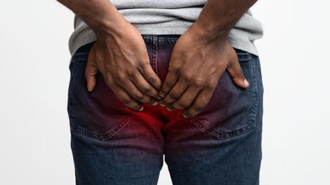 """Dr Gwendoline Ukum Enda : """"Les maladies anales peuvent toucher  tout le monde"""""""