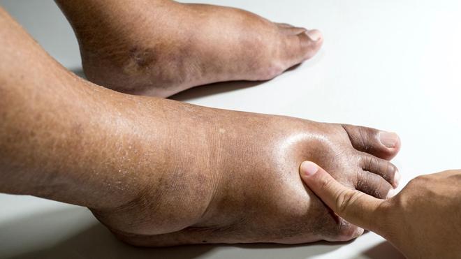 Les pieds diabétiques sont à surveiller particulièrement (Image d'illustration)
