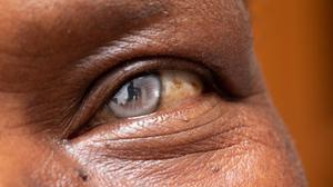 Cataracte au Sénégal : 1500 malades soignés gratuitement
