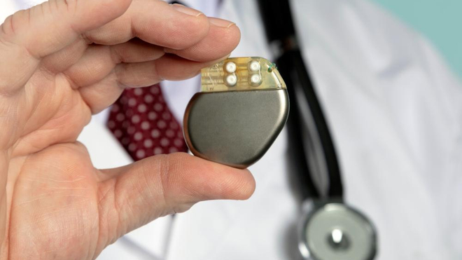 De nombreux Tchadiens pourront améliorer le suivi de leur pacemaker (photo d'illustration)