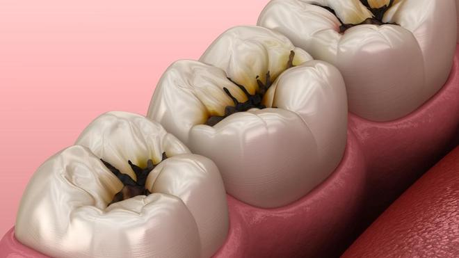 Illustration de molaires endommagées par des caries