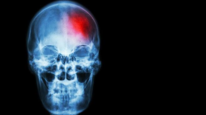 L'accident vasculaire cérébral est la première cause d'hospitalisation en Côte d'Ivoire (photo d'illustration)
