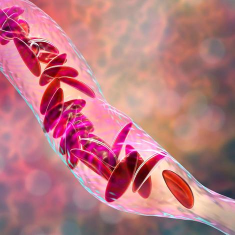 C'est quoi la drépanocytose, l'une des maladies les plus répandues en Afrique ?