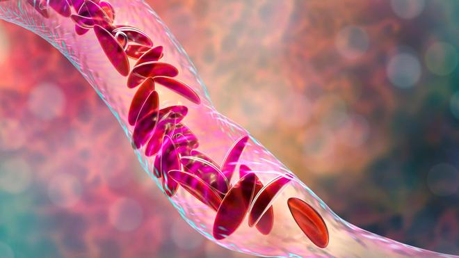 La dépranocytose est une déformation des globules rouges qui bouchent les vaisseaux sanguins (photo d'illustration)
