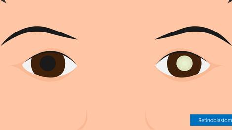 Quizz : Que savez-vous du rétinoblastome, cancer de l'oeil de l'enfant?