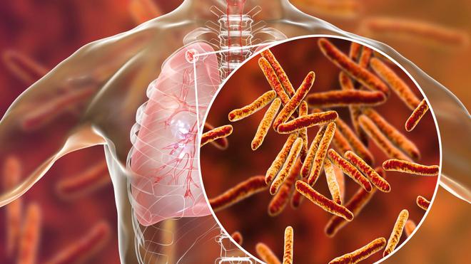 La tuberculose pulmonaire représente 70% des cas de tuberculose dans le monde