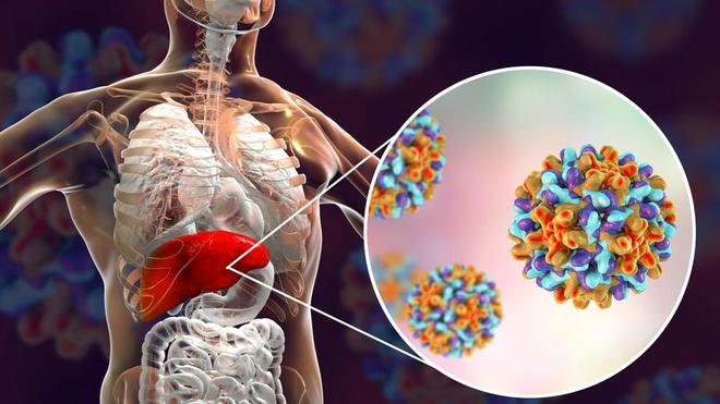 Un foie contaminé par le virus responsable de l'hépatite B (photo d'illustration)