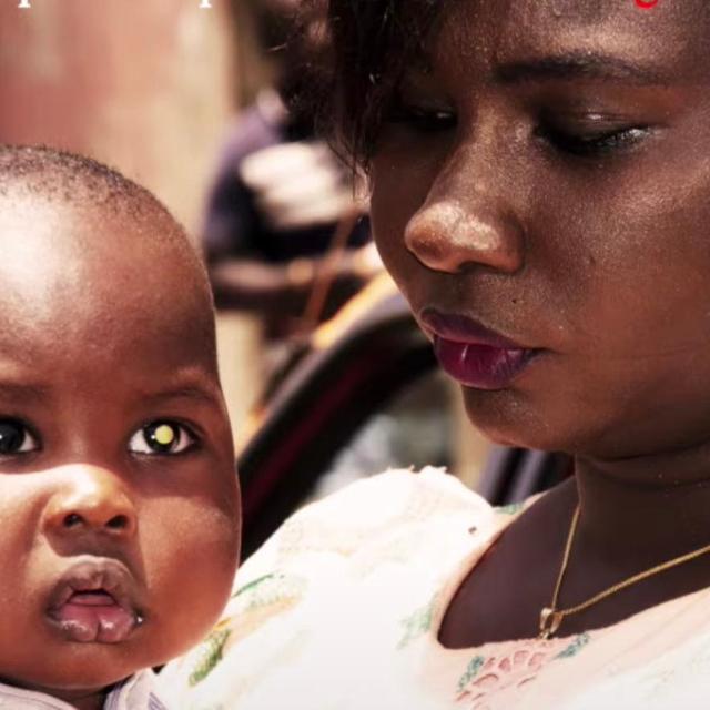 Rétinoblastome : regardez les yeux de vos enfants !