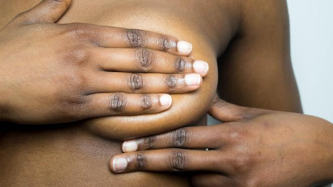 Le repassage des seins peut avoir des conséquences très graves sur la santé