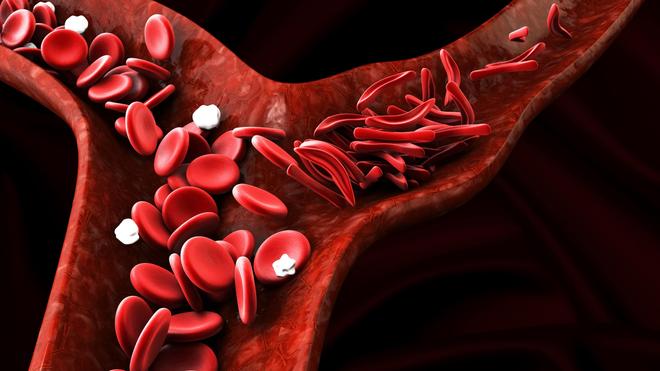 Au cours de la drépanocytose, les globules rouges prennent une forme anormale de faucille (photo d'illustration)